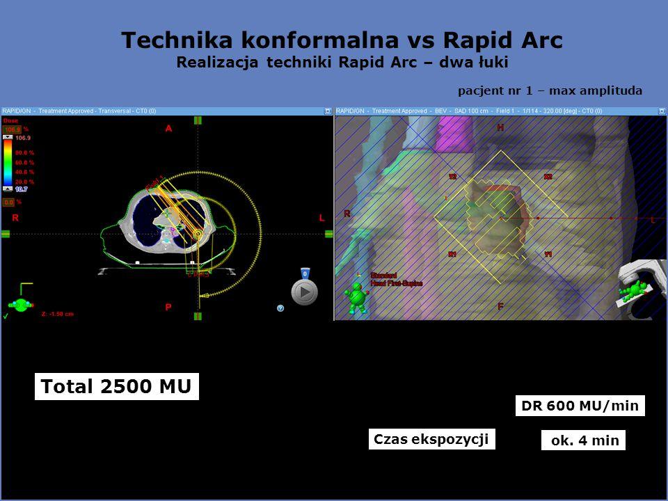 Technika konformalna vs Rapid Arc Realizacja techniki Rapid Arc – dwa łuki pacjent nr 1 – max amplituda Total 2500 MU Czas ekspozycji DR 600 MU/min ok.