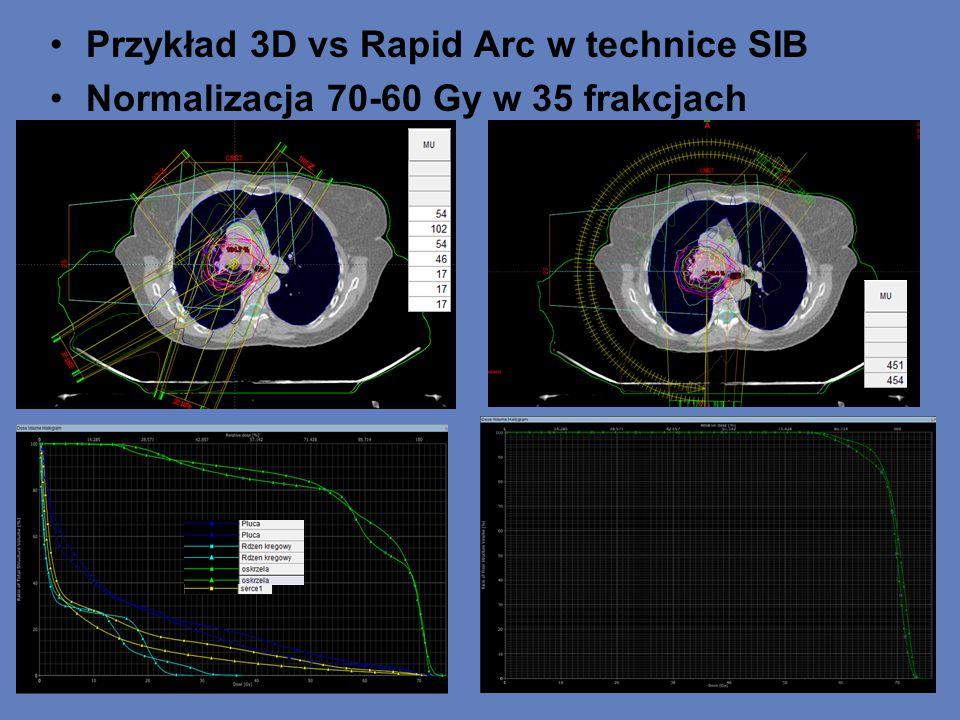 Przykład 3D vs Rapid Arc w technice SIB Normalizacja 70-60 Gy w 35 frakcjach