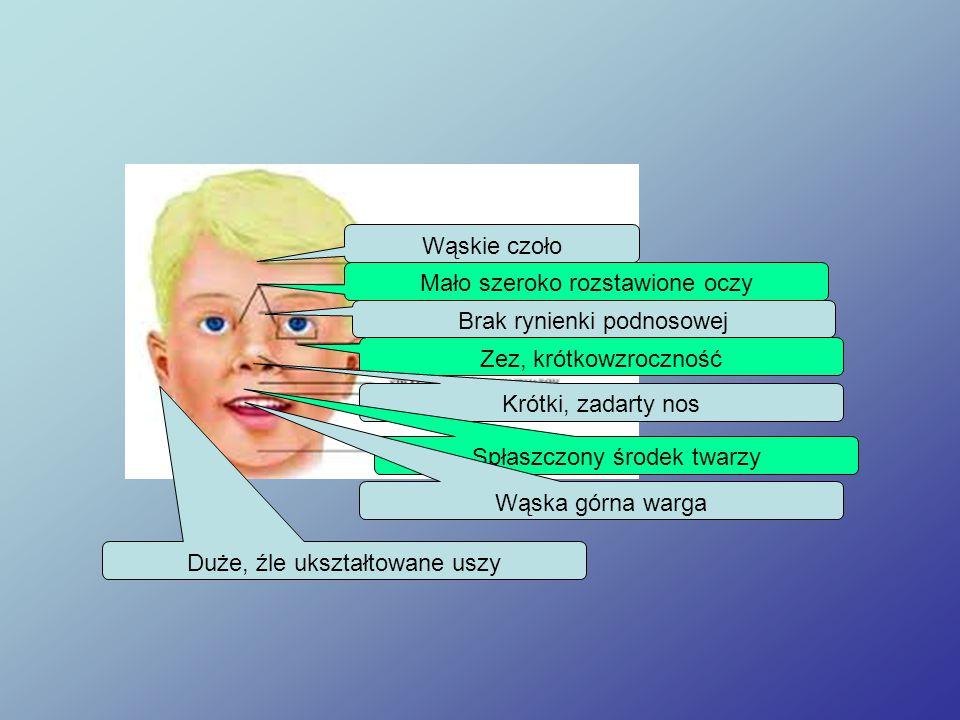 Wąskie czoło Mało szeroko rozstawione oczy Brak rynienki podnosowej Zez, krótkowzroczność Krótki, zadarty nos Spłaszczony środek twarzy Wąska górna warga Duże, źle ukształtowane uszy
