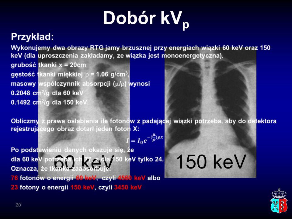 Dobór kV p 60 keV 150 keV 20