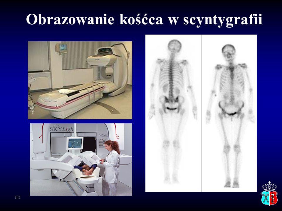 Obrazowanie kośćca w scyntygrafii 50