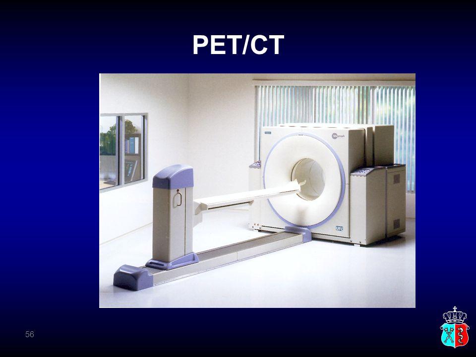 PET/CT 56