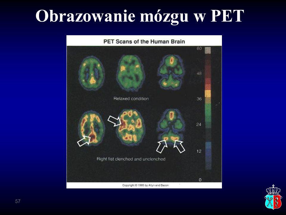 Obrazowanie mózgu w PET 57