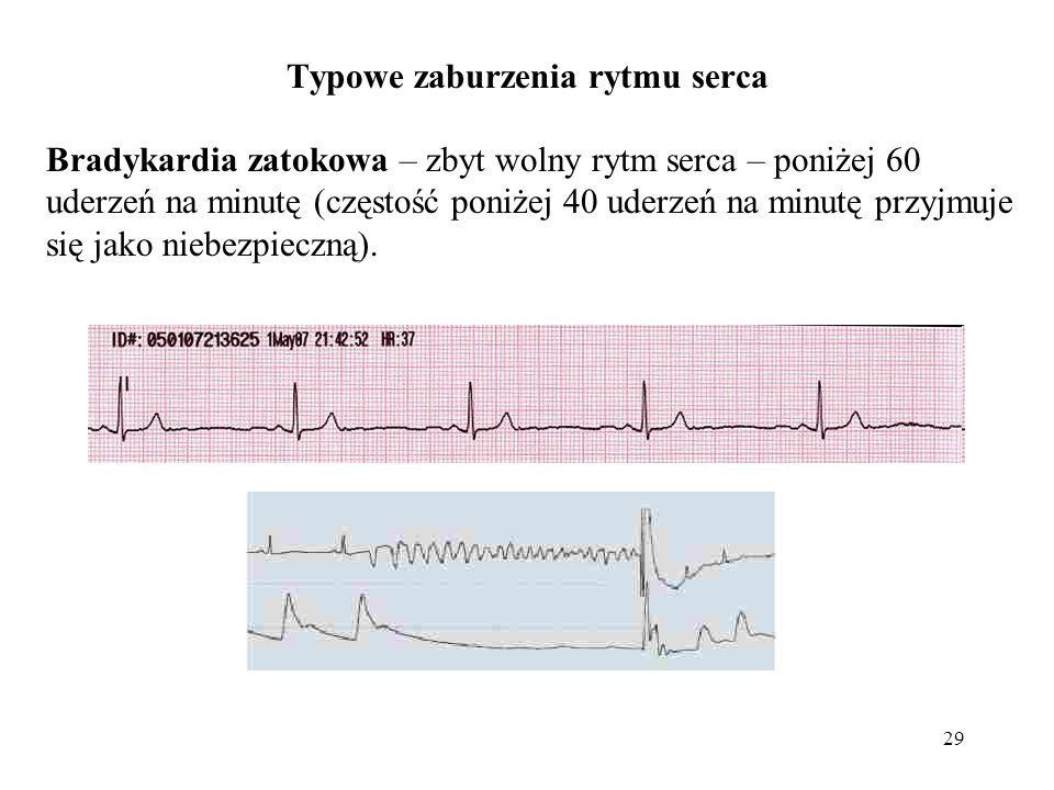 29 Typowe zaburzenia rytmu serca Bradykardia zatokowa – zbyt wolny rytm serca – poniżej 60 uderzeń na minutę (częstość poniżej 40 uderzeń na minutę przyjmuje się jako niebezpieczną).