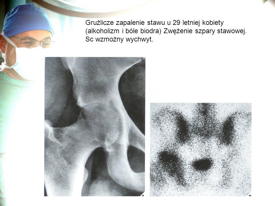 Gruźlicze zapalenie stawu u 29 letniej kobiety (alkoholizm i bóle biodra) Zwężenie szpary stawowej. Sc wzmożny wychwyt.