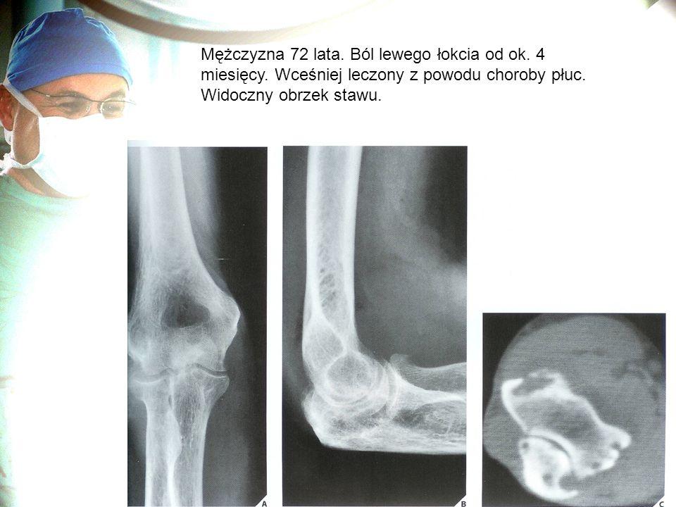 Mężczyzna 72 lata. Ból lewego łokcia od ok. 4 miesięcy. Wceśniej leczony z powodu choroby płuc. Widoczny obrzek stawu.