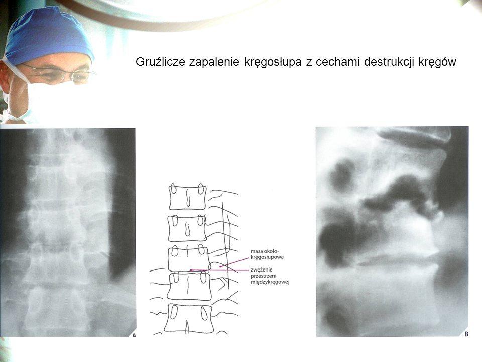 Gruźlicze zapalenie kręgosłupa z cechami destrukcji kręgów