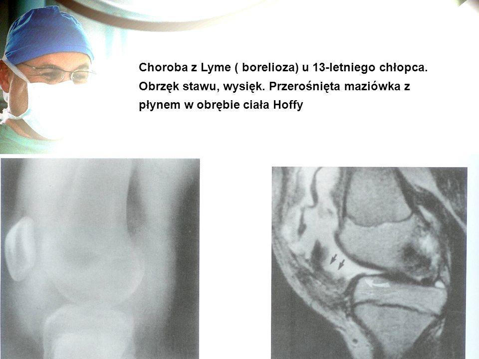 Choroba z Lyme ( borelioza) u 13-letniego chłopca. Obrzęk stawu, wysięk. Przerośnięta maziówka z płynem w obrębie ciała Hoffy