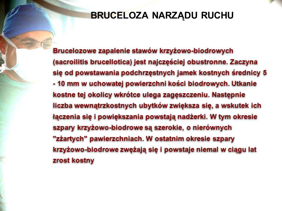 BRUCELOZA NARZĄDU RUCHU Brucelozowe zapalenie stawów krzyżowo-biodrowych (sacroilitis brucellotica) jest najczęściej obustronne. Zaczyna się od powst