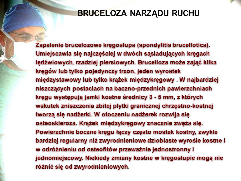 BRUCELOZA NARZĄDU RUCHU Zapalenie brucelozowe kręgosłupa (spondylitis brucellotica). Umiejscawia się najczęściej w dwóch sąsiadujących kręgach lędźwio