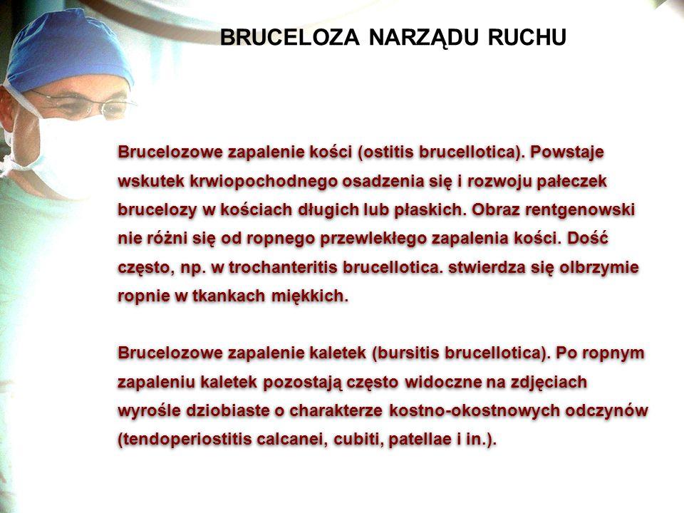 BRUCELOZA NARZĄDU RUCHU Brucelozowe zapalenie kości (ostitis brucellotica). Powstaje wskutek krwiopochodnego osadzenia się i rozwoju pałeczek bruceloz