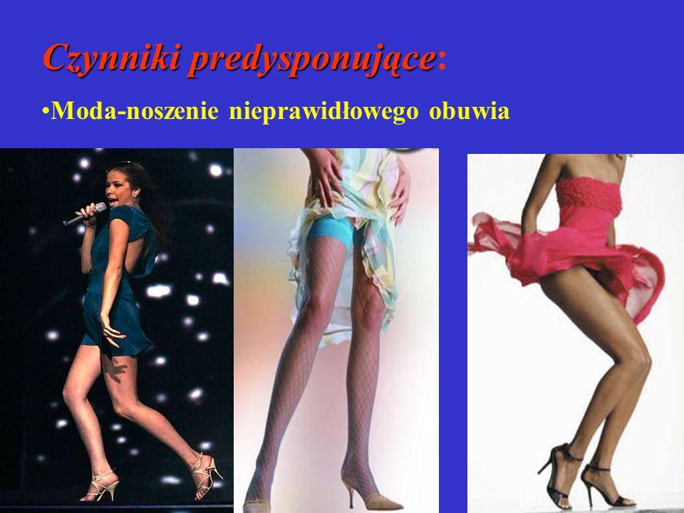 Czynniki predysponujące Czynniki predysponujące: Moda-noszenie nieprawidłowego obuwia