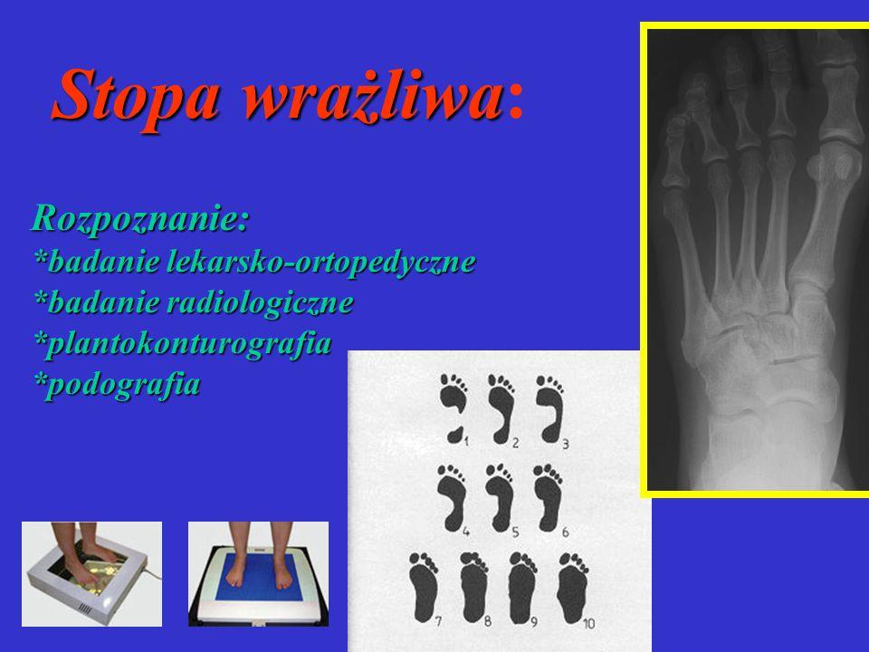 Stopa wrażliwa Stopa wrażliwa: Rozpoznanie: *badanie lekarsko-ortopedyczne *badanie radiologiczne *plantokonturografia*podografia