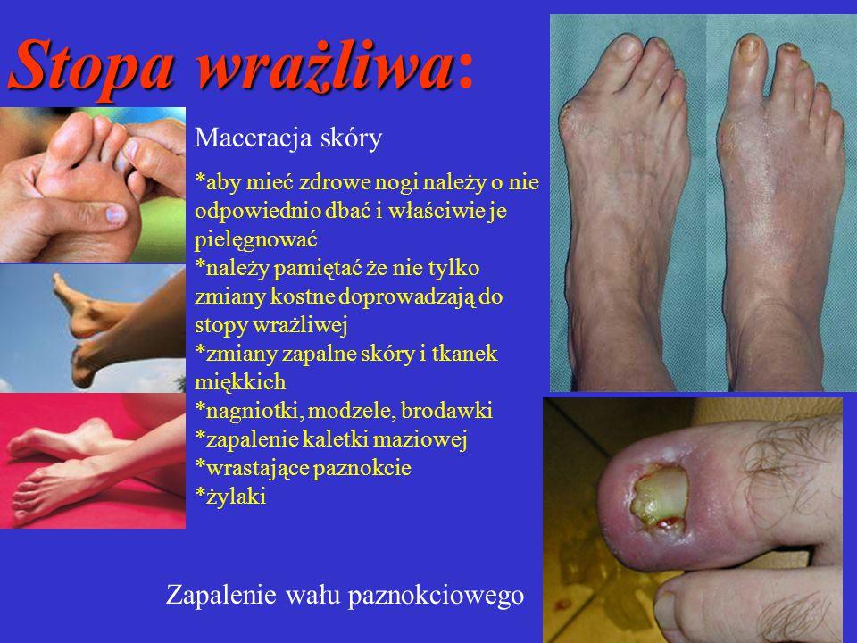 Stopa wrażliwa Stopa wrażliwa: Maceracja skóry Zapalenie wału paznokciowego *aby mieć zdrowe nogi należy o nie odpowiednio dbać i właściwie je pielęgn