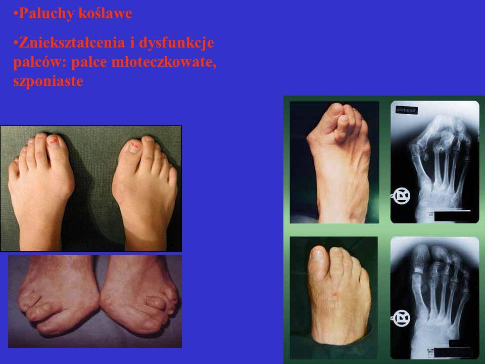 *Stopy mamy dwie, a zadaniem ich jest dźwiganie ciężaru ciała i poruszanie się *w odpowiednim czasie możemy wdrożyć profilaktykę i leczenie *pamiętajmy o zapobieganiu nadwadze otyłości
