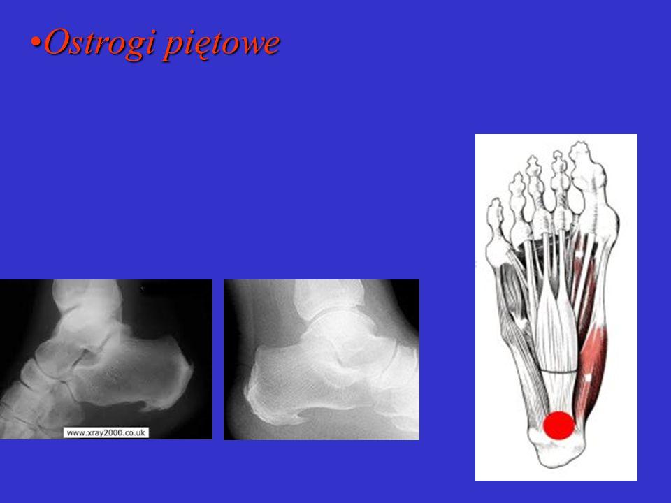 Czynniki predysponujące Czynniki predysponujące: uwarunkowania genetyczne wady wrodzone i nabyte kształt egipski stopy szczupła delikatna budowa stopy praca w pozycji stojącej dźwiganie ciężarów choroby metaboliczne i przewlekłe