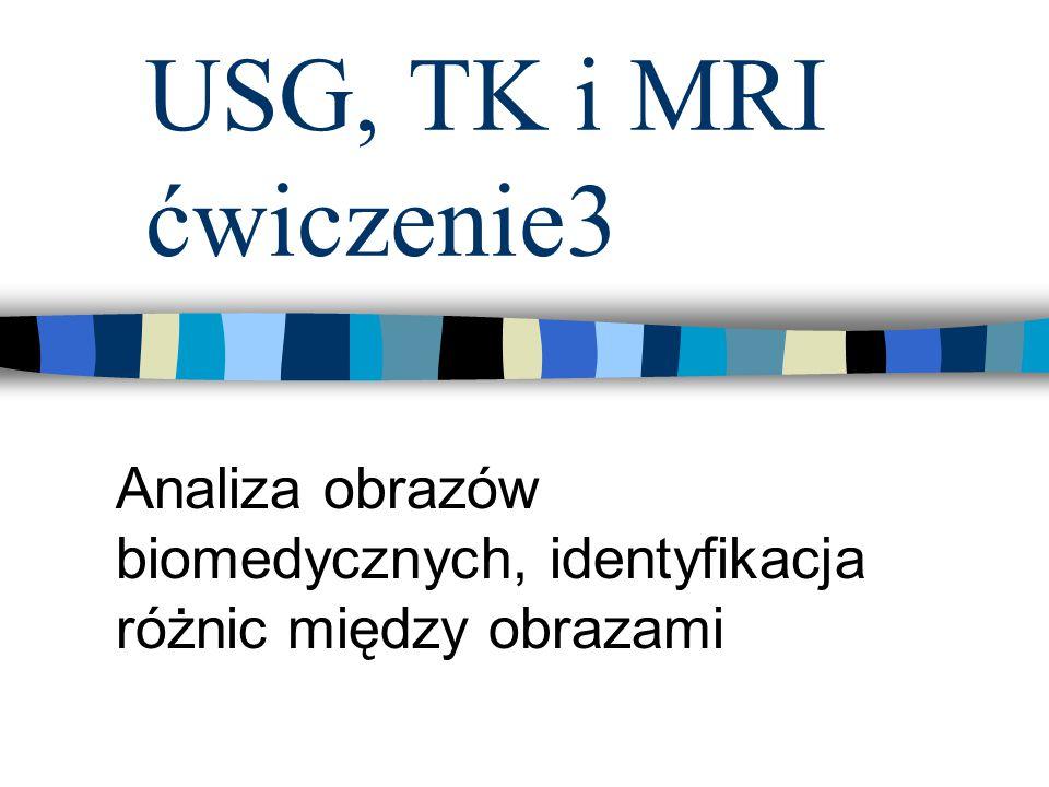 USG, TK i MRI ćwiczenie3 Analiza obrazów biomedycznych, identyfikacja różnic między obrazami
