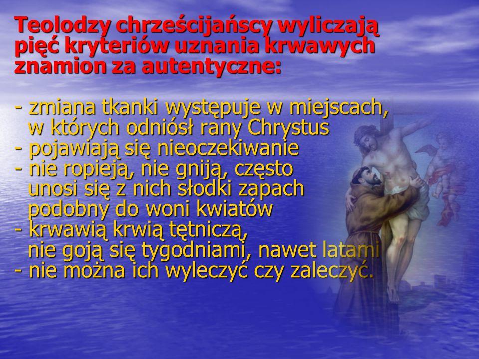 Stygmaty to znaki męki Chrystusa, a więc rany po przebiciu rąk, nóg, boku oraz rany po biczowaniu i cierniem koronowaniu.