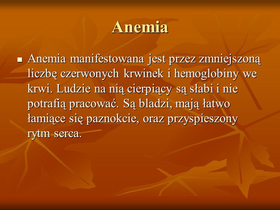 Anemia Anemia manifestowana jest przez zmniejszoną liczbę czerwonych krwinek i hemoglobiny we krwi.
