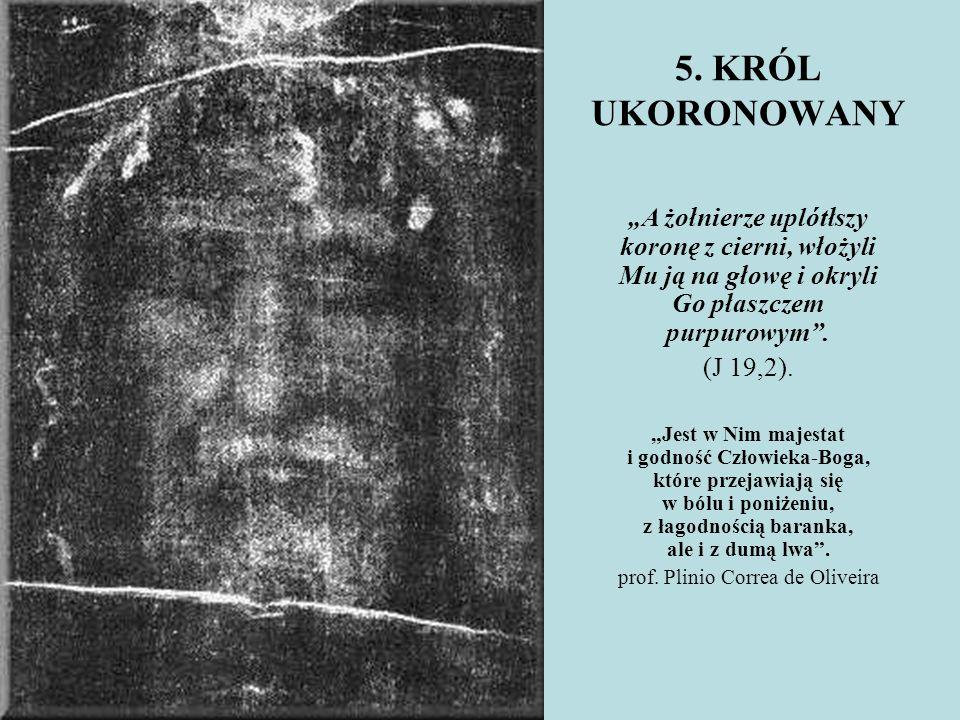 """5. KRÓL UKORONOWANY """"A żołnierze uplótłszy koronę z cierni, włożyli Mu ją na głowę i okryli Go płaszczem purpurowym"""". (J 19,2). """"Jest w Nim majestat i"""