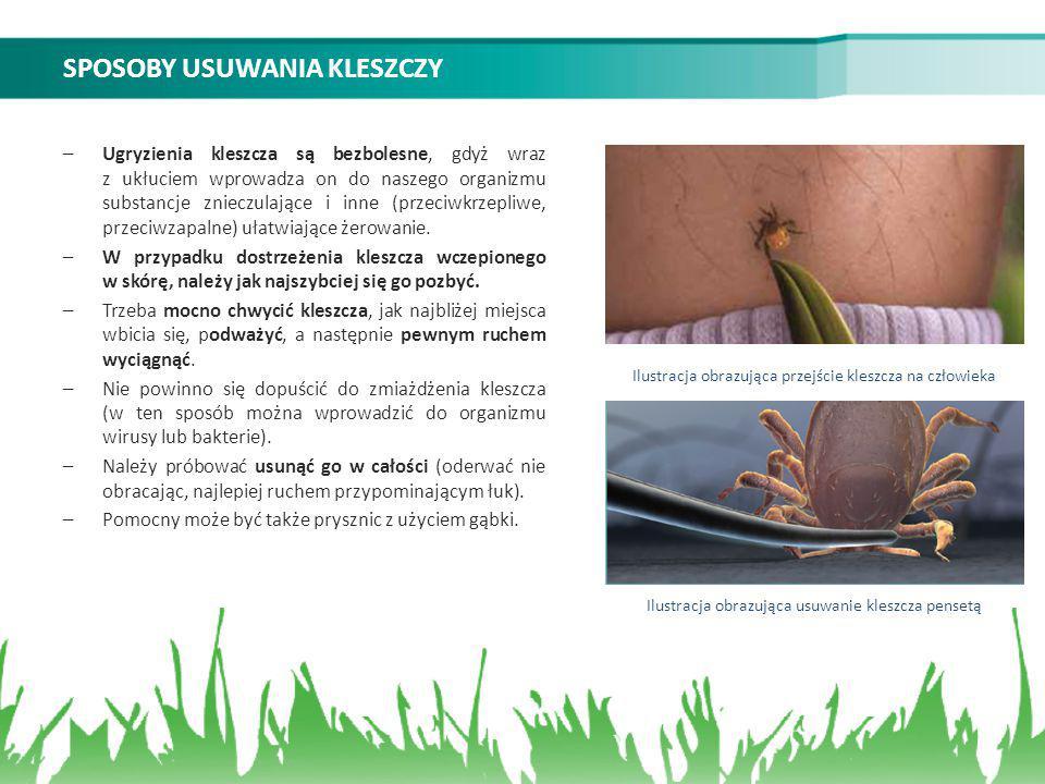 SPOSOBY USUWANIA KLESZCZY –Ugryzienia kleszcza są bezbolesne, gdyż wraz z ukłuciem wprowadza on do naszego organizmu substancje znieczulające i inne (