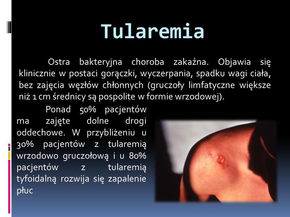 Tularemia Ostra bakteryjna choroba zakaźna. Objawia się klinicznie w postaci gorączki, wyczerpania, spadku wagi ciała, bez zajęcia węzłów chłonnych (g