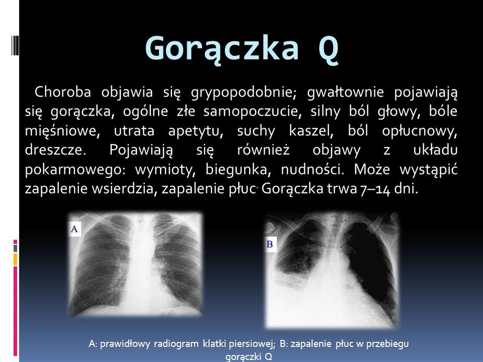 Gorączka Q Choroba objawia się grypopodobnie; gwałtownie pojawiają się gorączka, ogólne złe samopoczucie, silny ból głowy, bóle mięśniowe, utrata apetytu, suchy kaszel, ból opłucnowy, dreszcze.