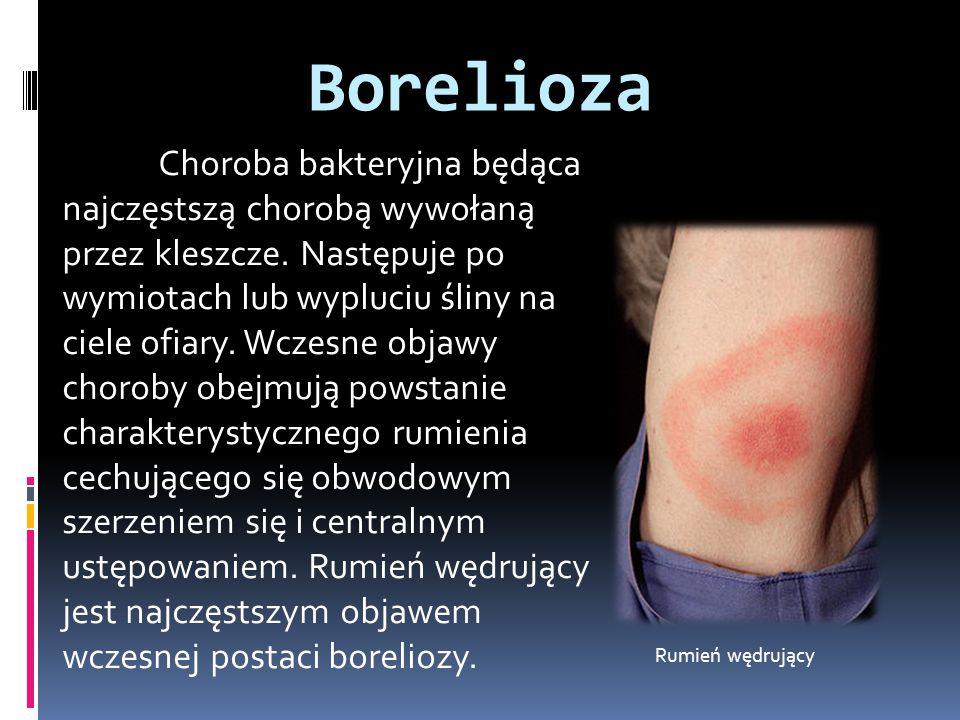 Borelioza Choroba bakteryjna będąca najczęstszą chorobą wywołaną przez kleszcze. Następuje po wymiotach lub wypluciu śliny na ciele ofiary. Wczesne ob