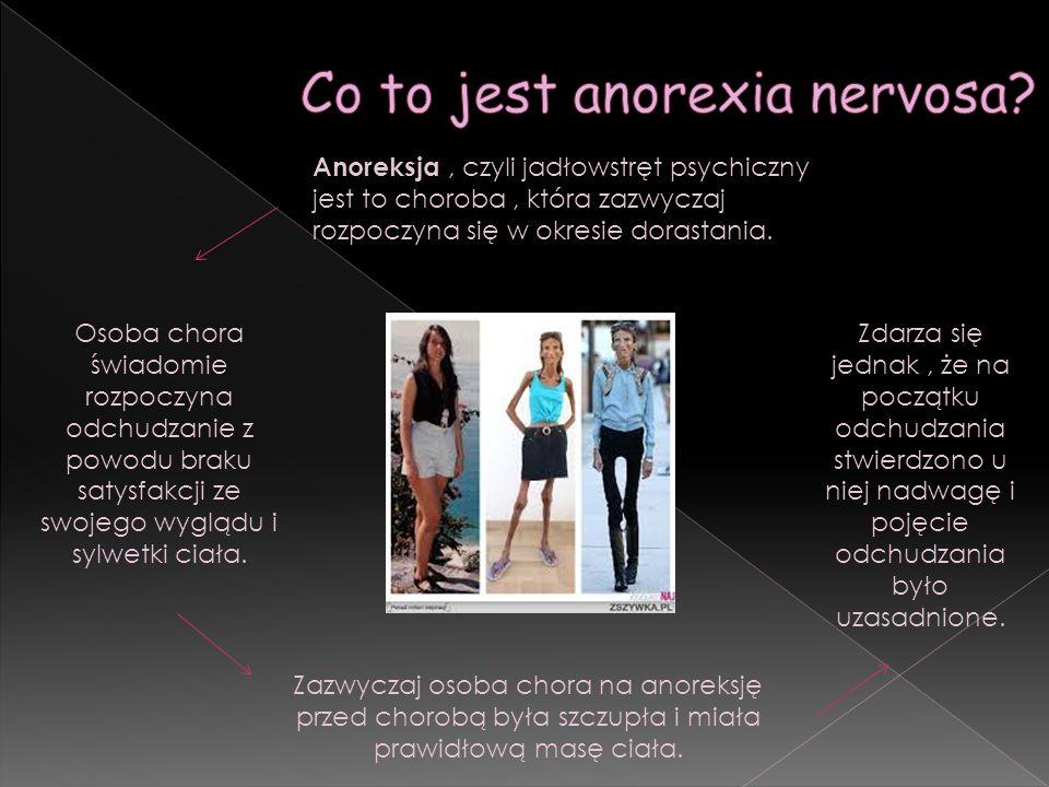 Anoreksja, czyli jadłowstręt psychiczny jest to choroba, która zazwyczaj rozpoczyna się w okresie dorastania. Osoba chora świadomie rozpoczyna odchudz