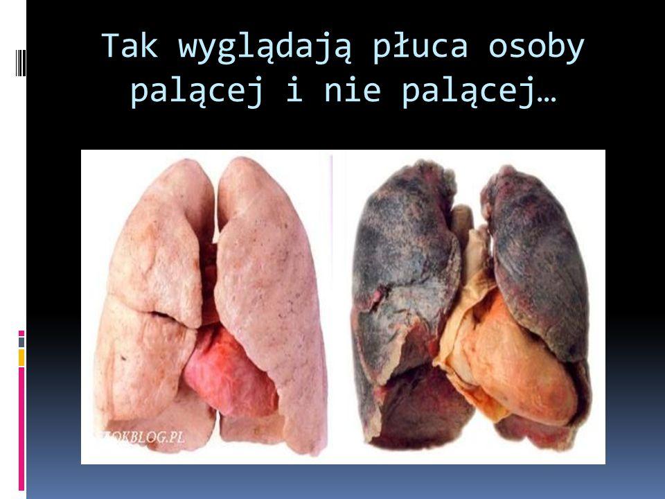 Tak wyglądają płuca osoby palącej i nie palącej…
