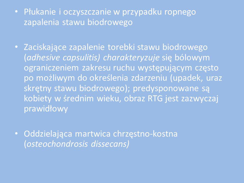 Płukanie i oczyszczanie w przypadku ropnego zapalenia stawu biodrowego Zaciskające zapalenie torebki stawu biodrowego (adhesive capsulitis) charaktery