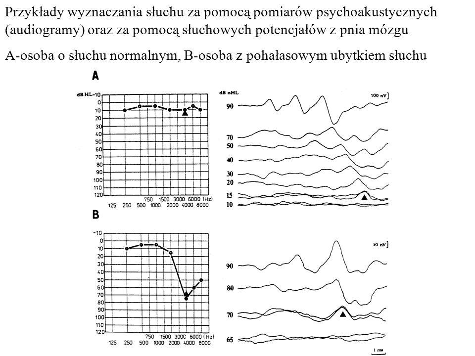 Przykłady wyznaczania słuchu za pomocą pomiarów psychoakustycznych (audiogramy) oraz za pomocą słuchowych potencjałów z pnia mózgu A-osoba o słuchu no