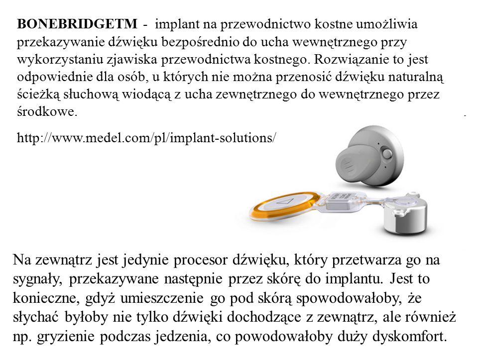 BONEBRIDGETM - implant na przewodnictwo kostne umożliwia przekazywanie dźwięku bezpośrednio do ucha wewnętrznego przy wykorzystaniu zjawiska przewodni