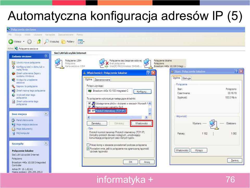 Automatyczna konfiguracja adresów IP (5) 76 informatyka +
