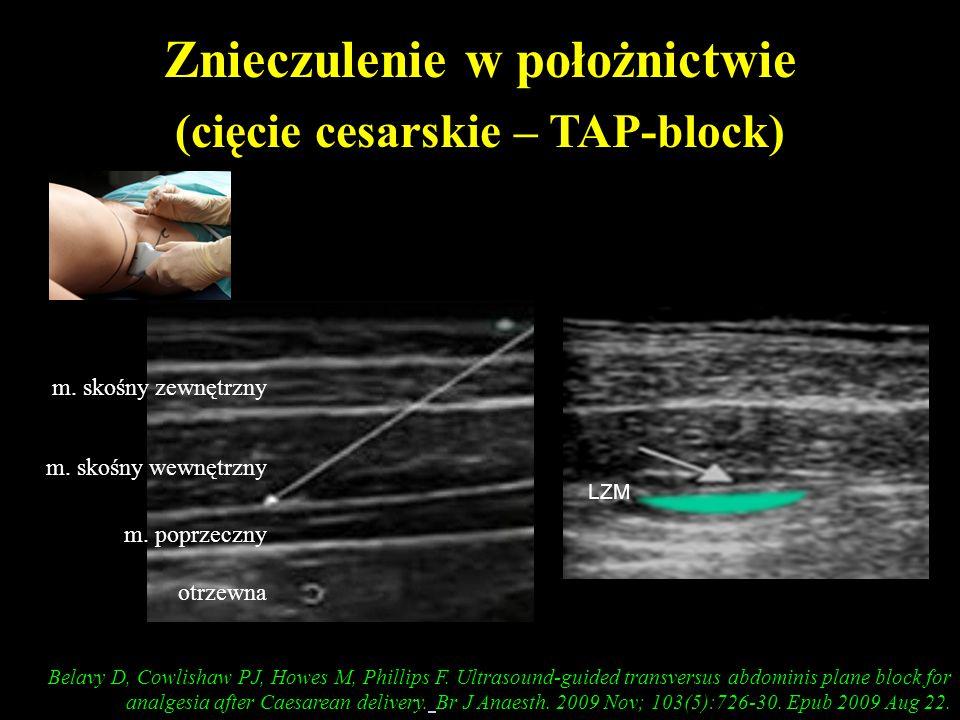 Znieczulenie w położnictwie (cięcie cesarskie – TAP-block) Belavy D, Cowlishaw PJ, Howes M, Phillips F. Ultrasound-guided transversus abdominis plane