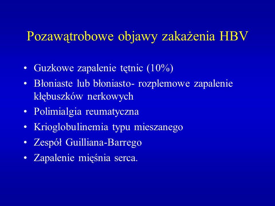 Pozawątrobowe objawy zakażenia HBV Guzkowe zapalenie tętnic (10%) Błoniaste lub błoniasto- rozplemowe zapalenie kłębuszków nerkowych Polimialgia reuma