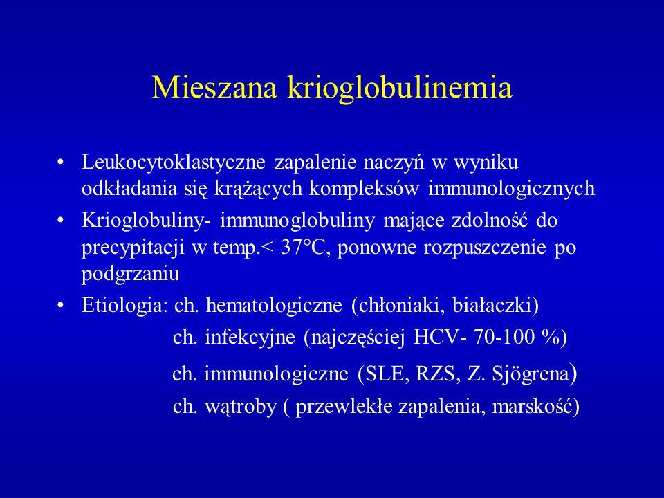 Mieszana krioglobulinemia Leukocytoklastyczne zapalenie naczyń w wyniku odkładania się krążących kompleksów immunologicznych Krioglobuliny- immunoglob