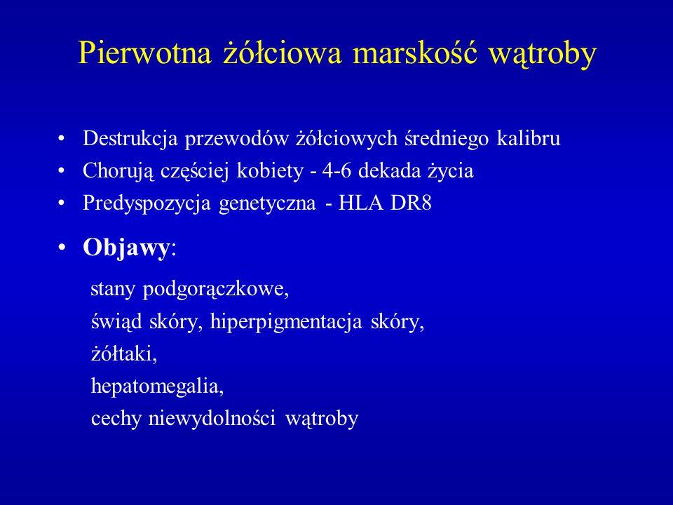 Pierwotna żółciowa marskość wątroby Destrukcja przewodów żółciowych średniego kalibru Chorują częściej kobiety - 4-6 dekada życia Predyspozycja genety