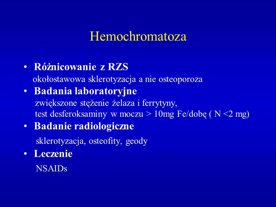Hemochromatoza Różnicowanie z RZS okołostawowa sklerotyzacja a nie osteoporoza Badania laboratoryjne zwiększone stężenie żelaza i ferrytyny, test desf