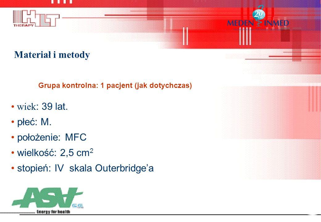 wiek : 39 lat. płeć: M. położenie: MFC wielkość: 2,5 cm 2 stopień: IV skala Outerbridge'a Grupa kontrolna: 1 pacjent (jak dotychczas) Materiał i metod