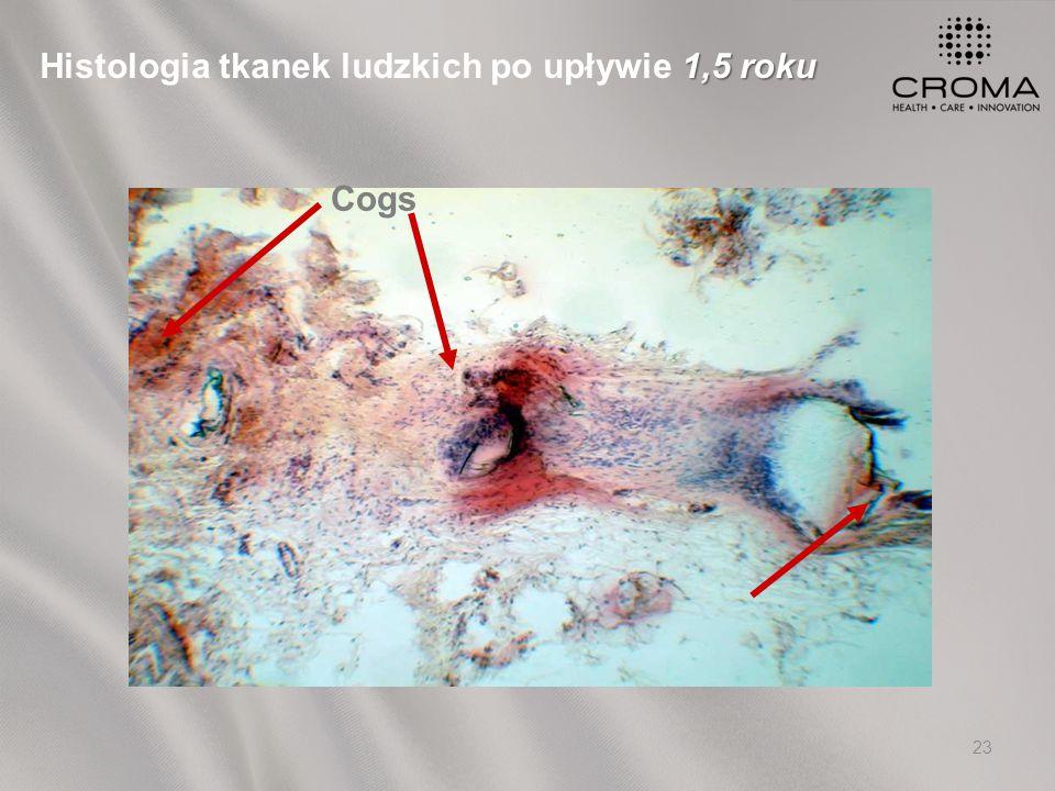 23 Cogs 1,5 roku Histologia tkanek ludzkich po upływie 1,5 roku
