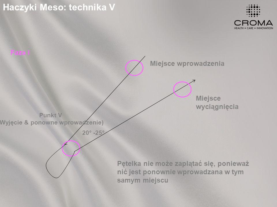 Haczyki Meso: technika V Miejsce wprowadzenia Punkt V (Wyjęcie & ponowne wprowadzenie) Miejsce wyciągnięcia 20° -25° Pętelka nie może zaplątać się, ponieważ nić jest ponownie wprowadzana w tym samym miejscu Faza I