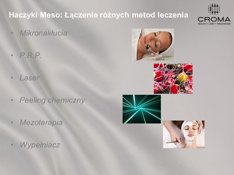 Haczyki Meso: Łączenie różnych metod leczenia Mikronakłucia P.R.P.