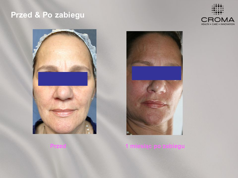 Przed & Po zabiegu Przed1 miesiąc po zabiegu