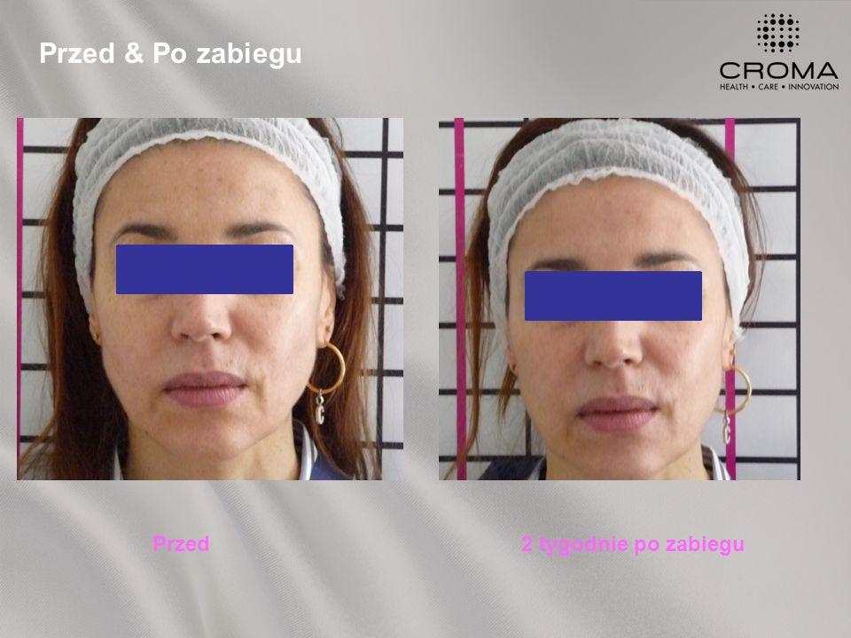 Przed & Po zabiegu Przed2 tygodnie po zabiegu