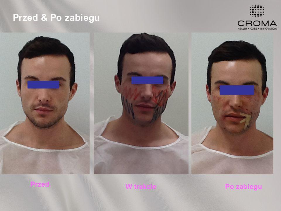 Przed & Po zabiegu Przed W trakciePo zabiegu