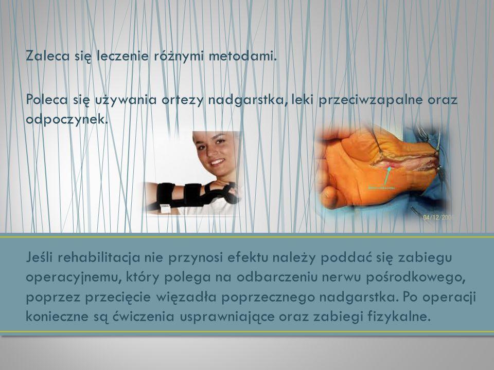 Zaleca się leczenie różnymi metodami. Poleca się używania ortezy nadgarstka, leki przeciwzapalne oraz odpoczynek. Jeśli rehabilitacja nie przynosi efe