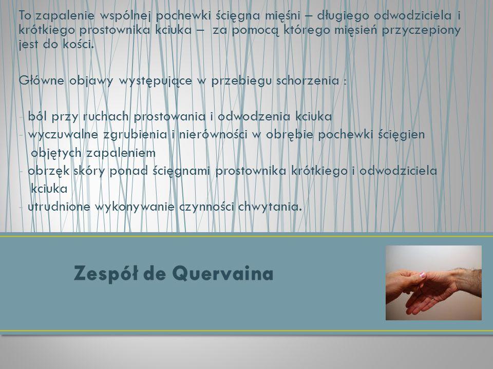 To zapalenie wspólnej pochewki ścięgna mięśni – długiego odwodziciela i krótkiego prostownika kciuka – za pomocą którego mięsień przyczepiony jest do