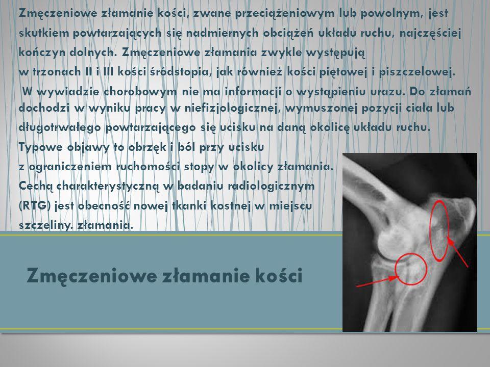 Zmęczeniowe złamanie kości, zwane przeciążeniowym lub powolnym, jest skutkiem powtarzających się nadmiernych obciążeń układu ruchu, najczęściej kończy