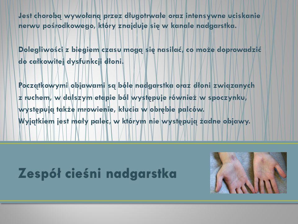 Jest chorobą wywołaną przez długotrwałe oraz intensywne uciskanie nerwu pośrodkowego, który znajduje się w kanale nadgarstka. Dolegliwości z biegiem c